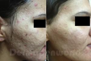 Micro needling, minder huidverslapping en een mooie stevige huid.