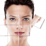 Acne huidtherapie
