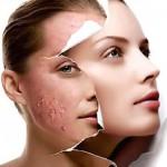 Verschillende soorten acne