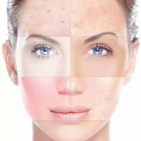 Wat is het gevolg van stress op de huid?