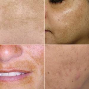 Voorkomen en verminderen van pigmentvlekken d.m.v. de juiste huidverzorgingsproducten.